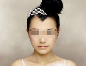 南宁雍禾植发医院靠谱吗  美人尖种植的效果怎么样