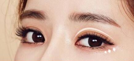 柳州中西医结合医院埋线双眼皮 眼睛就像美丽的星星