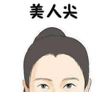 广州植发医院哪家好 美人尖种植优势有哪些