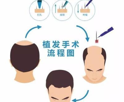 秃头植发可以吗 北京中山医院做秃头植发需要多少钱