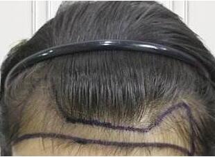 沈阳科发源植发怎么样 发际线种植有风险吗