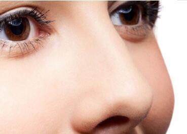 沈阳欧华整形医院鼻翼缩小的优势  副作用有哪些
