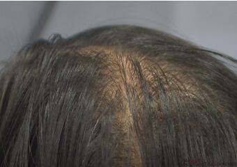 广州科发源植发医院头发加密有哪些优势  有副作用吗