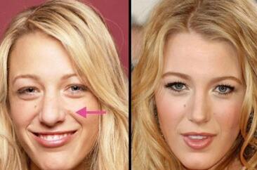 好莱坞人人都整鼻子 明星是如何整容的