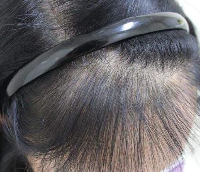 头发种植术原理是什么 郑州科发源植发整形医院怎么样