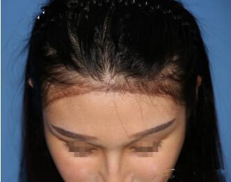 哈尔滨科发源植发医院头发种植特点有哪些   适合哪些人