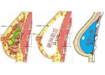 三明第二医院整形科乳房再造的优势  有副作用吗