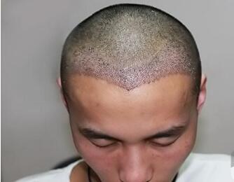 重庆长城医院植发靠谱吗  发际线种植需要多少钱