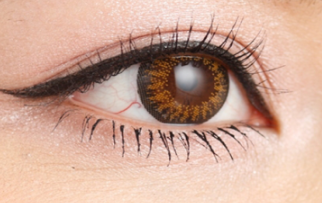 <font color=red>上睑下垂矫正</font>手术有危险 哈尔滨艺星整形医院上眼脸下垂矫正的效果如何