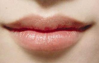 漂唇手术有哪些特点 青岛诺德医学美容医院漂唇过程