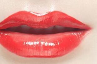 福州麦瑞整形美容医院唇裂修复怎么样 唇裂修复术的麻醉方法