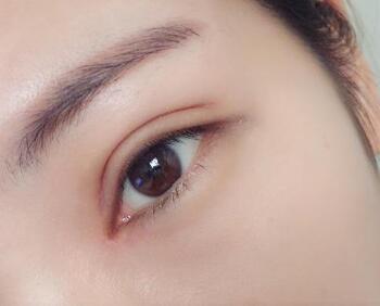 深圳流花医院整形科眼睛整形手术价格 开眼角贵吗