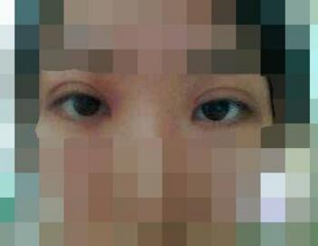 石家庄双眼皮整形价格表  石家庄蓝山整形医院双眼皮修复需要多少钱