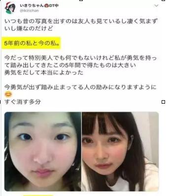 日本的21岁女孩ikiri整形 被亲爹嫌丑命该有多苦
