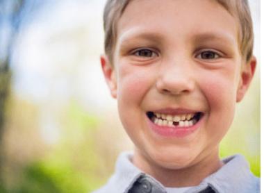 杭州美奥口腔整形医院牙齿矫正多少钱