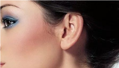 耳垂畸形怎么办 耳垂畸形矫正需要多少钱
