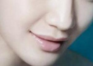 【鼻部整形】假体隆鼻/进口假体隆鼻 提升鼻部轮廓