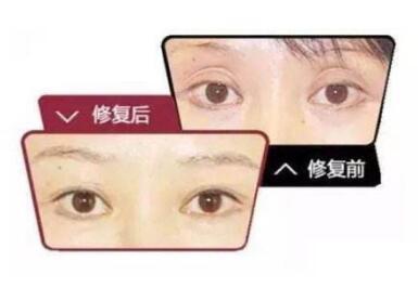 武汉艺星整形医院双眼皮失败修复需要多少钱  效果怎么样