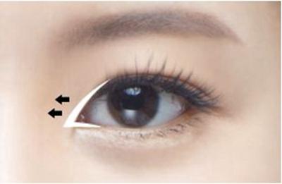 开封艺美整形开内眼角会留疤吗 开眼角疤痕如何避免