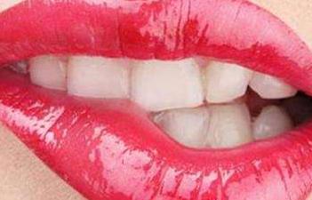 烤瓷牙到底有几种 上海维佳康口腔医院做烤瓷牙后有副作用吗