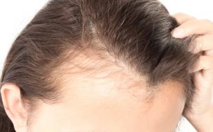 【毛发种植】发际线种植/改造发际线 拥有茂密头发