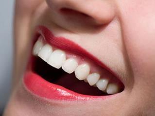 南京口腔医院全瓷烤瓷牙 打造微笑女神