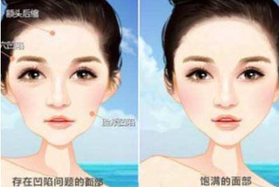 面部填充让您变得更年轻 宜春天泽皮肤整形医院好吗
