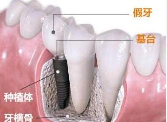 牙齿种植贵吗 西安莲湖圣贝口腔整形医院地址