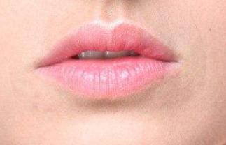 唇裂修复术前注意有哪些 兰州军区陆军总院整形科唇裂修复的方法