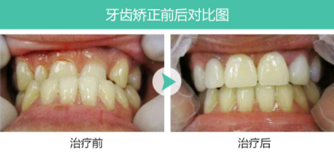 成都锦江极光口腔整形医院牙齿矫正的费用 会改变脸型吗