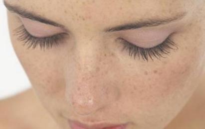 新疆哈密阳光整形医院光子嫩肤价格 皮肤活力有弹性