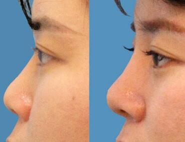 長春鼻整形價格表  長春中妍整形醫院朝天鼻矯正需要多少錢