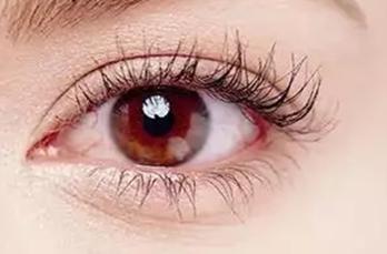 乌鲁木齐友谊医院整形科<font color=red>上睑下垂矫正</font>让你的双眸更加漂亮有神采