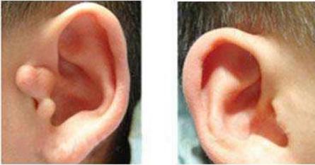 北京京通医院整形科做耳部整形好吗 附耳是什么