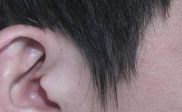 重庆时光毛发移植整形医院怎么样 鬓角种植后会不会脱落