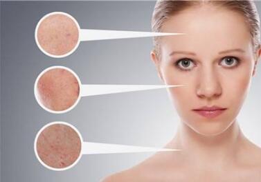 長春非凡整形醫院激光除皺需要多少錢   深層除皺延緩衰老