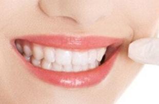 北京维乐口腔医院地包天矫正的过程 预防地包天的方法
