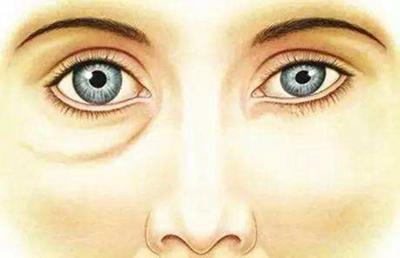 蘇州維多利亞眼袋吸脂適應人群有哪些 多少錢