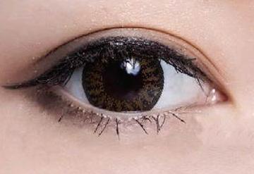 双眼皮整形手术的方法 宁波友好医院整形美容科做双眼皮好吗