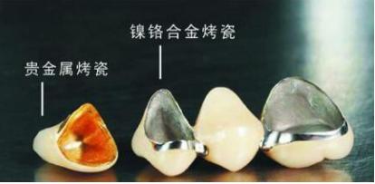 西安百思美口腔整形医院烤瓷牙的优点 一颗烤瓷牙多少钱