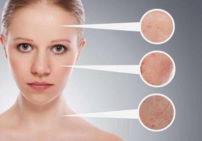 常州美贝尔电波拉皮除皱怎么样 紧肤除皱为皮肤注入活力
