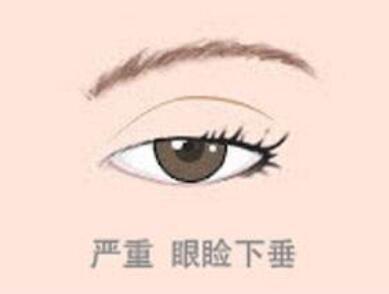 杭州芭黎雅整形醫院上瞼下垂矯正術效果 還你迷人明眸