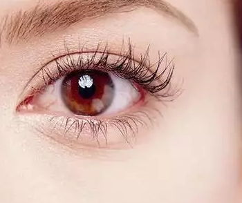 """""""五一""""哪家医院做双眼皮有优惠 效果怎么样"""