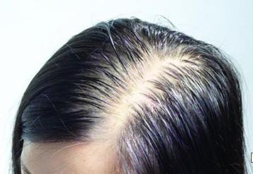 头发稀少的原因有哪些 广州植发医院哪家好
