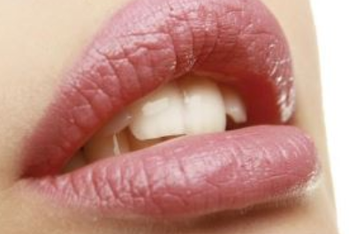 唇裂修复手术需要注意哪些方面 唐山星光整形医院好吗