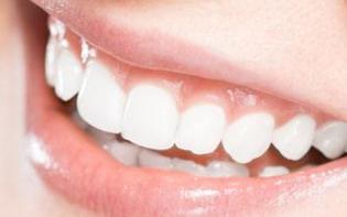 牙齿不齐有哪些矫正方式 上海圣康口腔门诊部可以牙齿矫正吗