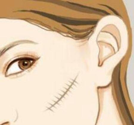 大连悦美格整形疤痕切除效果好吗 需要多少钱