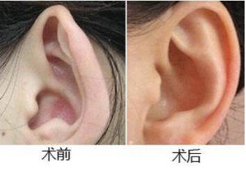 沈陽杏林整形醫院全耳再造手術特點 安全性怎么樣