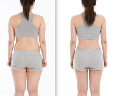 成都济慈德美整形医院腰腹部抽脂减肥要多少钱