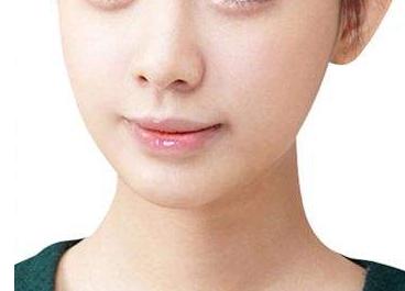 整容医院排名 下颌角整形塑造精致瓜子脸